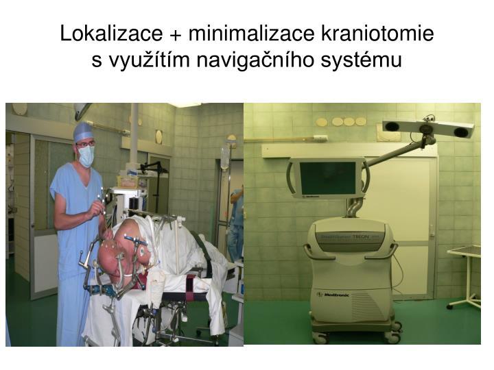 Lokalizace + minimalizace kraniotomie