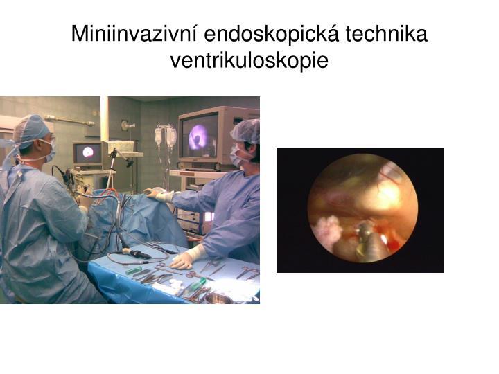 Miniinvazivní endoskopická technika