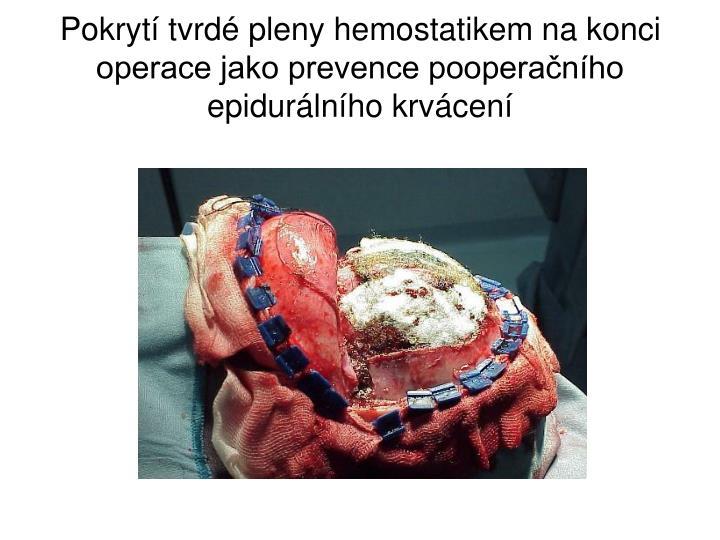 Pokrytí tvrdé pleny hemostatikem na konci operace jako prevence pooperačního epidurálního krvácení