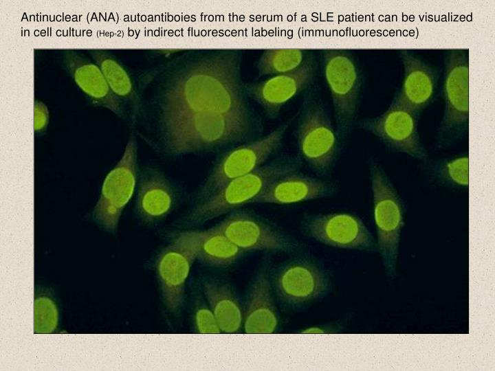 Antinuclear (ANA) autoantiboies from the serum of a SLE patient can be visualized in cell culture