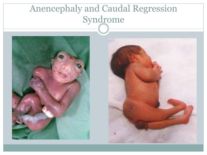 Anencephaly and Caudal Regression Syndrome