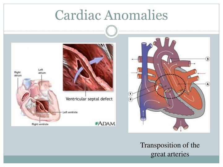 Cardiac Anomalies