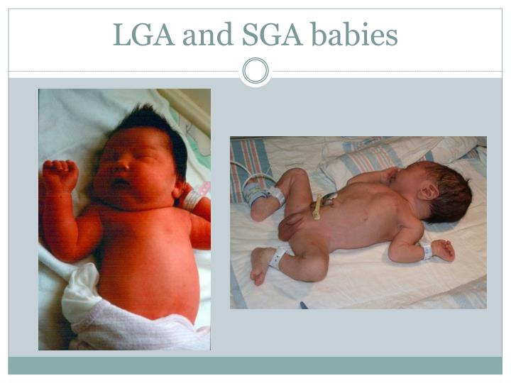 LGA and SGA babies