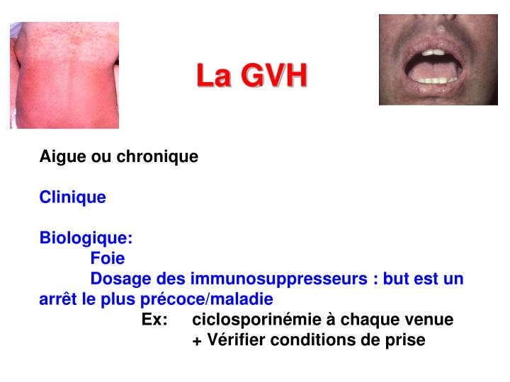 La GVH