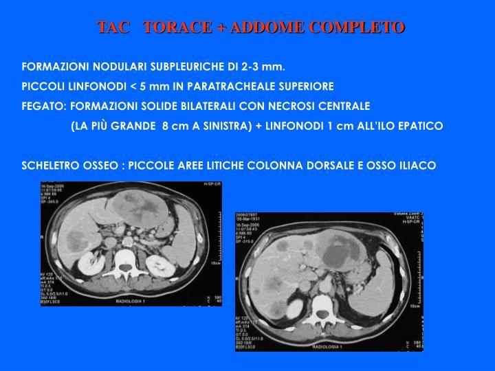 TAC   TORACE + ADDOME COMPLETO