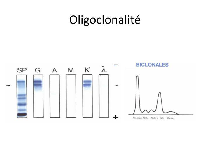 Oligoclonalité