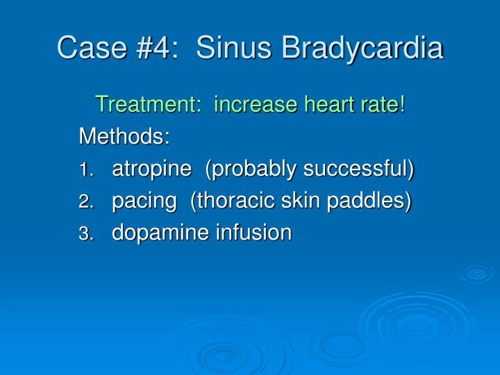 Case #4:  Sinus Bradycardia