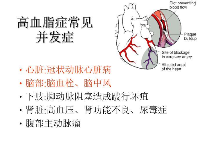 高血脂症常见并发症