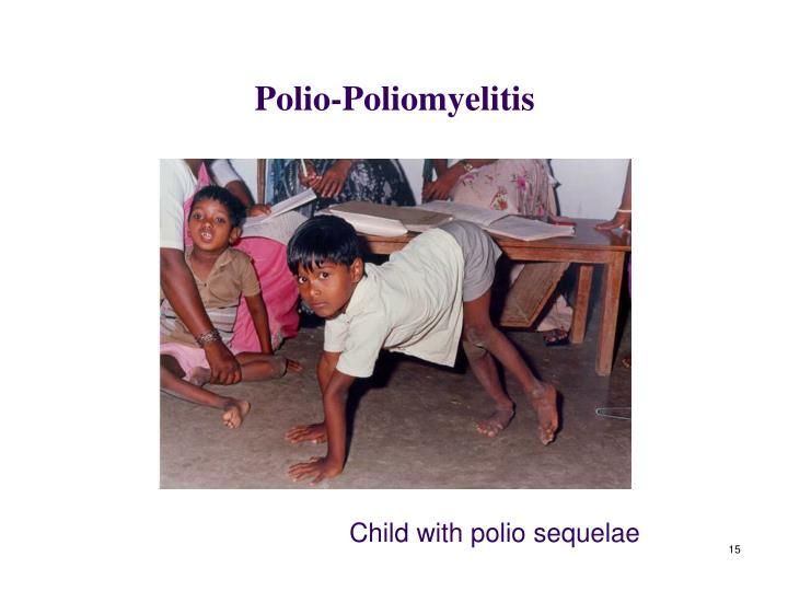 Polio-Poliomyelitis