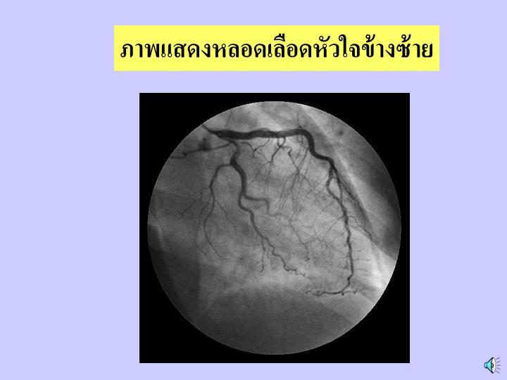 ภาพแสดงหลอดเลือดหัวใจข้างซ้าย