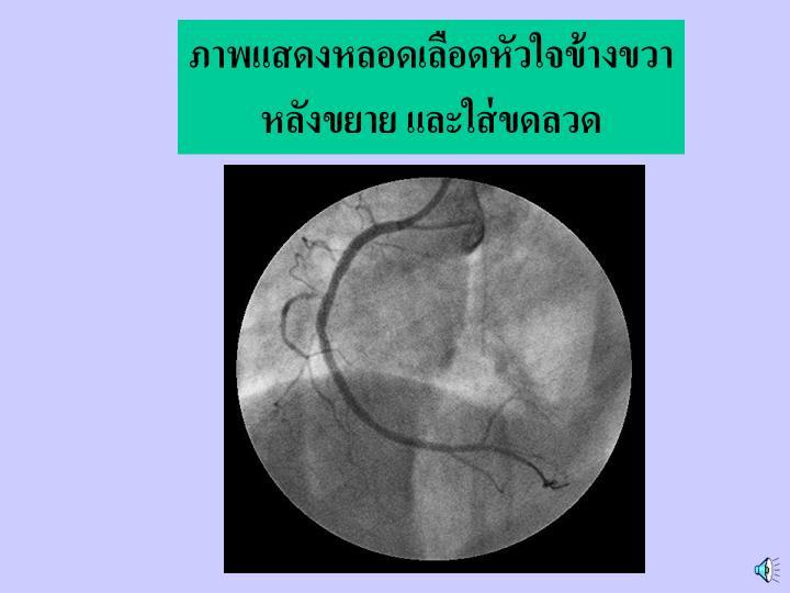ภาพแสดงหลอดเลือดหัวใจข้างขวา หลังขยาย และใส่ขดลวด