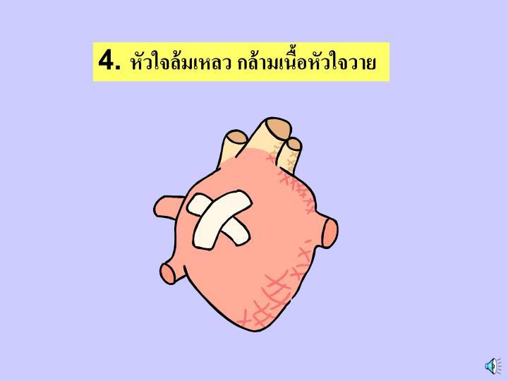 4. หัวใจล้มเหลว กล้ามเนื้อหัวใจวาย