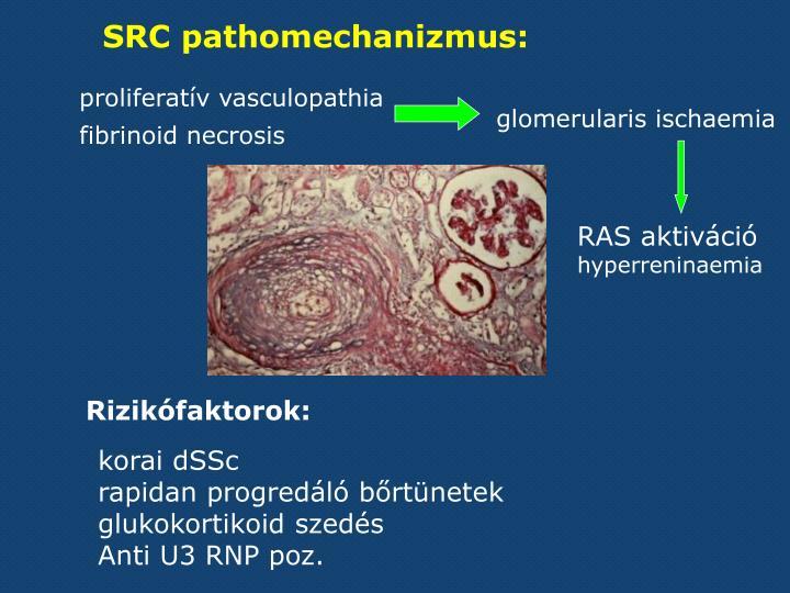SRC pathomechanizmus: