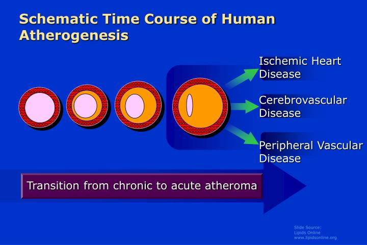 Schematic time course of human atherogenesis