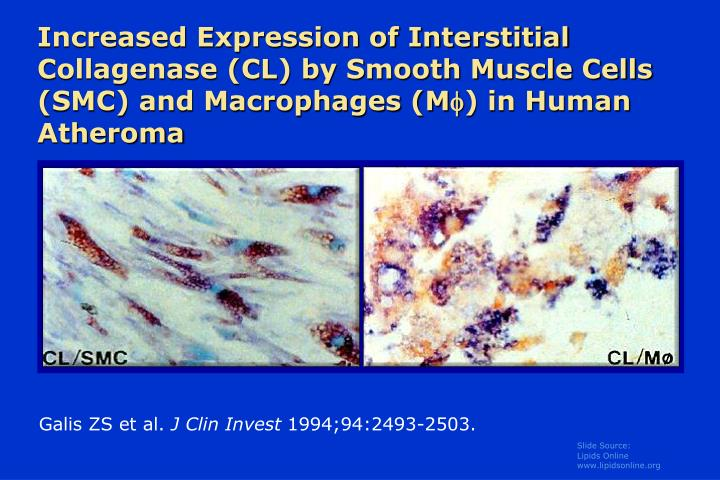 Increased Expression of Interstitial Collagenase (CL) by Smooth Muscle Cells (SMC) and Macrophages (M
