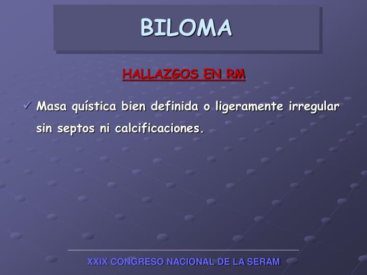 BILOMA