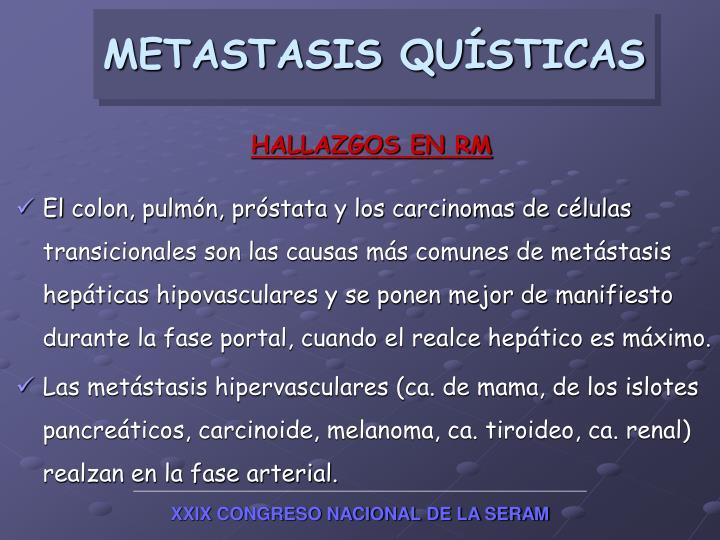 METASTASIS QUÍSTICAS