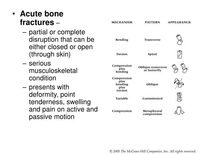 Acute bone fractures