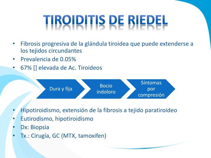 TIROIDITIS DE RIEDEL