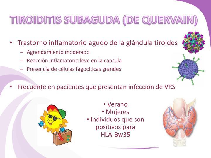 TIROIDITIS SUBAGUDA (DE QUERVAIN)