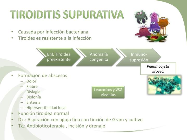 TIROIDITIS SUPURATIVA