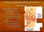 stages in the healing of a bone fracture3
