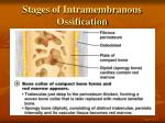 stages of intramembranous ossification4