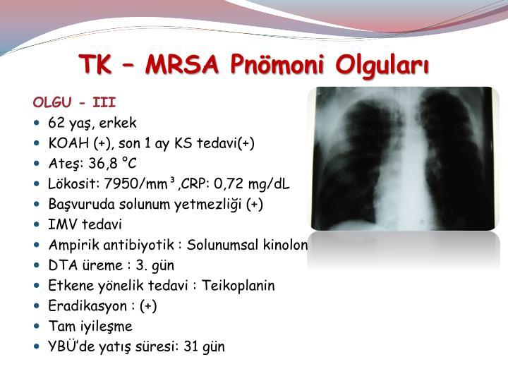 TK – MRSA