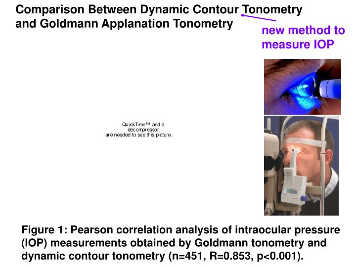 Comparison Between Dynamic Contour Tonometry and Goldmann Applanation Tonometry