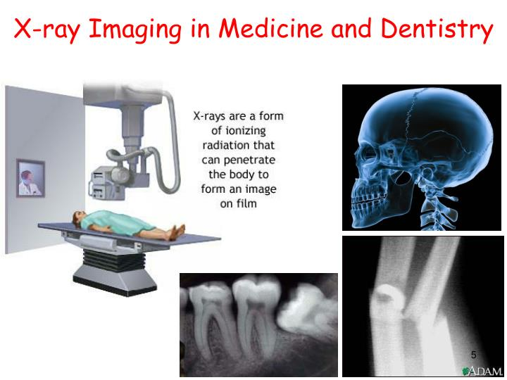 X-ray Imaging in Medicine and Dentistry