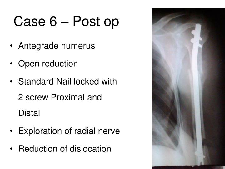 Case 6 – Post op