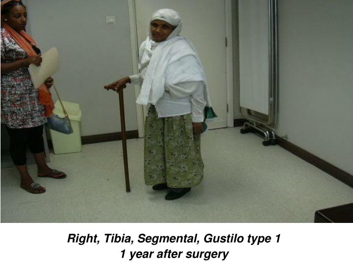 Right, Tibia, Segmental, Gustilo type 1