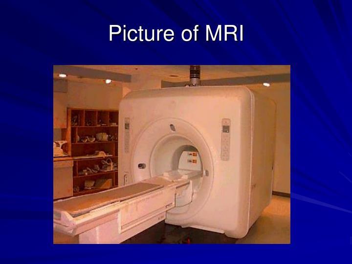 Picture of MRI