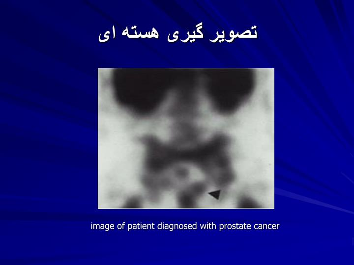 تصویر گیری هسته ای