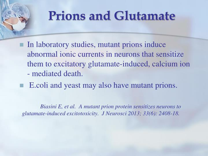 Prions and Glutamate