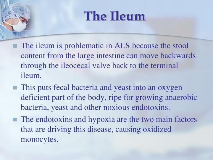 The Ileum