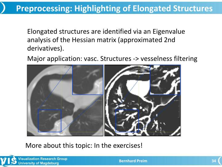 Preprocessing: Highlighting of Elongated Structures