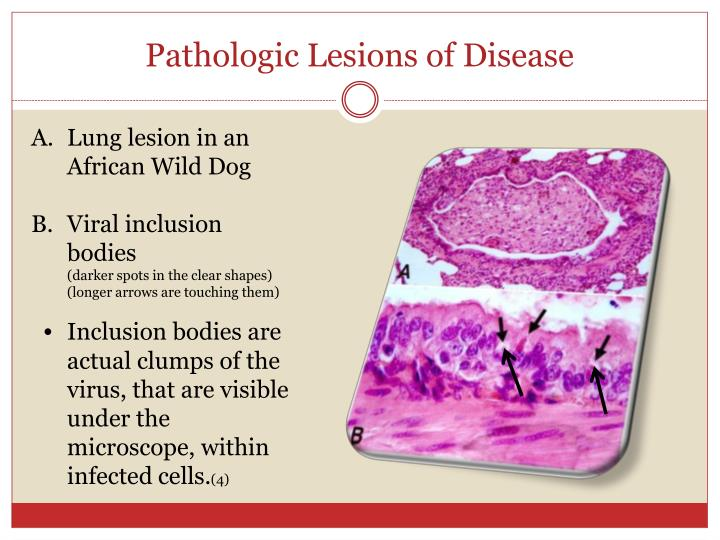 Pathologic Lesions of Disease
