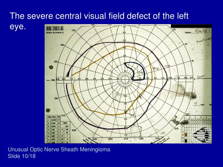 The severe central visual field defect of the left eye.