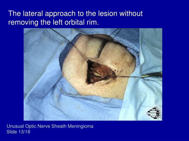 The lateral approach to the lesion without removing the left orbital rim.