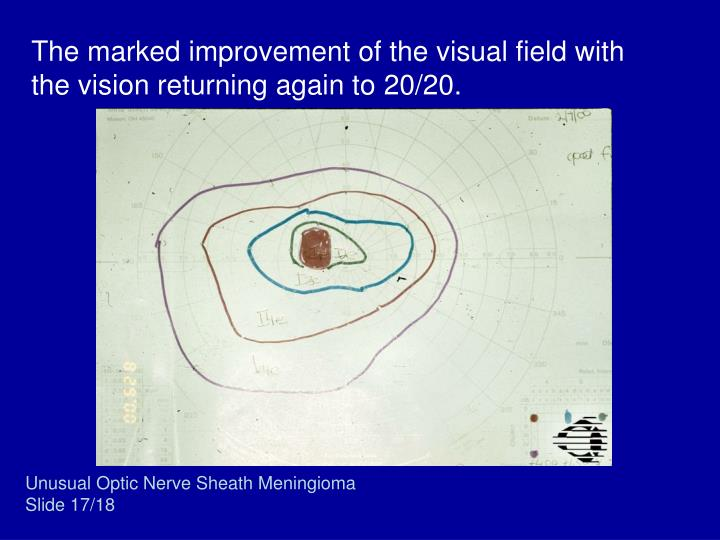 The marked improvement of the visual field with the vision returning again to 20/20.