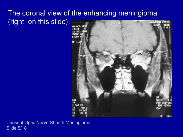 The coronal view of the enhancing meningioma (right  on this slide).