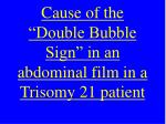 cause of the double bubble sign in an abdominal film in a trisomy 21 patient