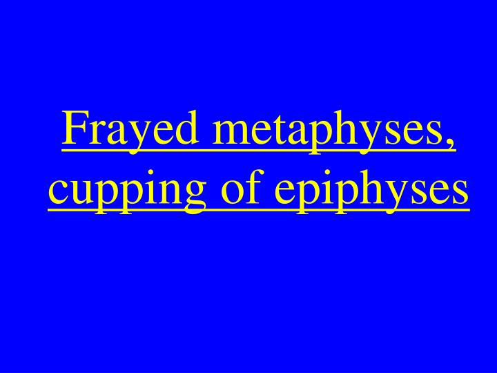Frayed metaphyses, cupping of epiphyses