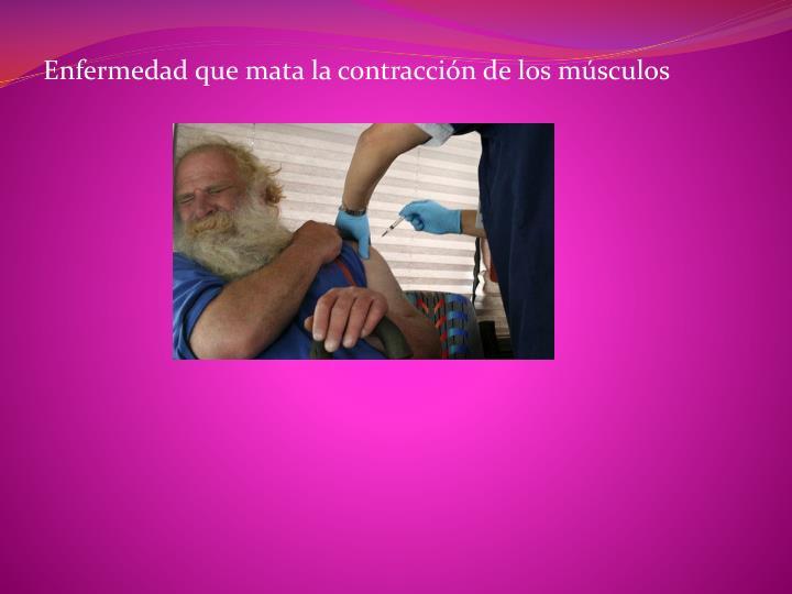 Enfermedad que mata la contracción de los músculos