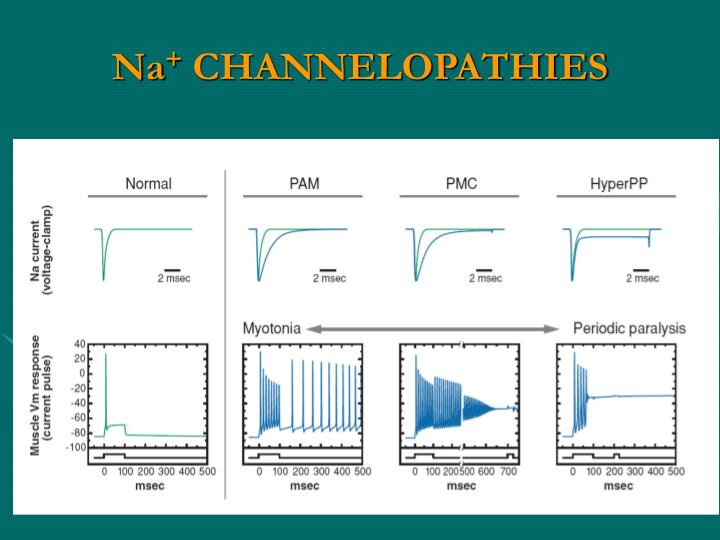 Na channelopathies