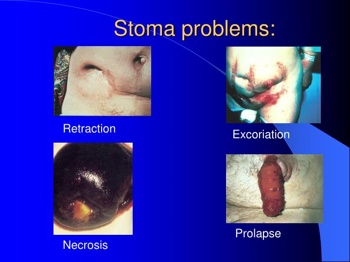 Stoma problems: