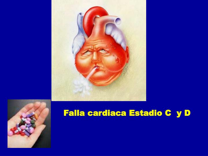 Falla cardiaca Estadio C  y D
