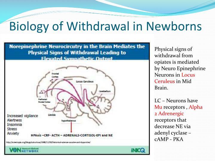 Biology of Withdrawal in Newborns