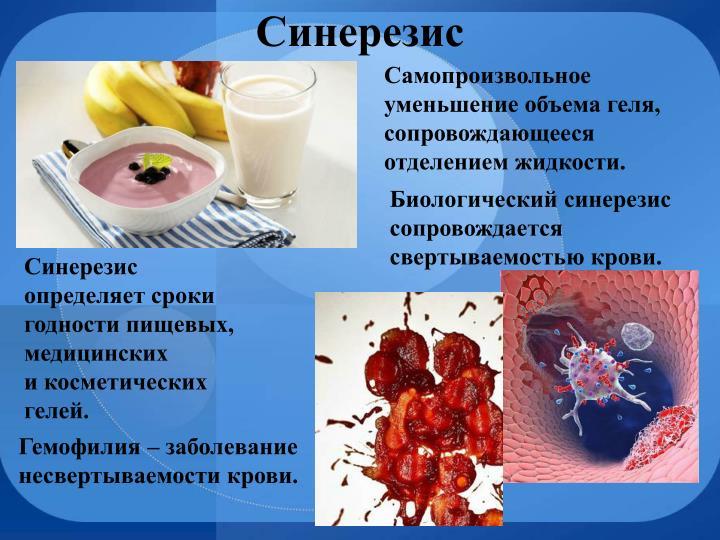 Синерезис